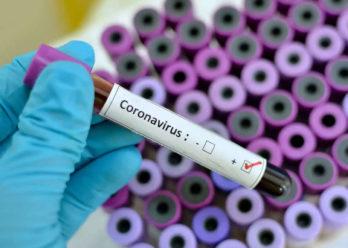 Coronavirus: reporte diario sobre los casos en la Provincia